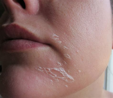 Skin Shedding In by Apeele Peel System Fashion Entries