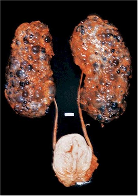 cadenas ligeras e insuficiencia renal insuficiencia renal