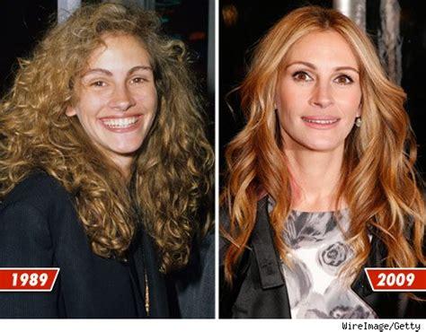 les stars avant après leurs transformations: julia roberts