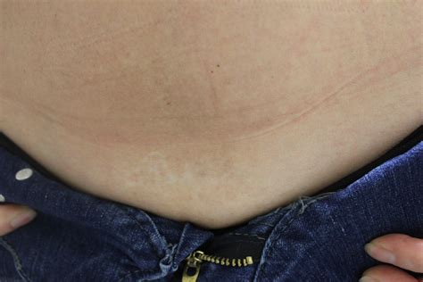laser tattoo removal complications laser removal results on abdomen