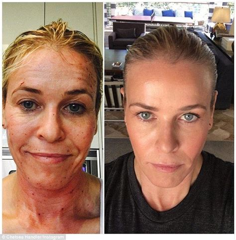 red light therapy for wrinkles before and after 43 best red light therapy before and after images on