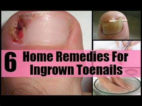 home based remedies for ingrown toenail toenail fungus
