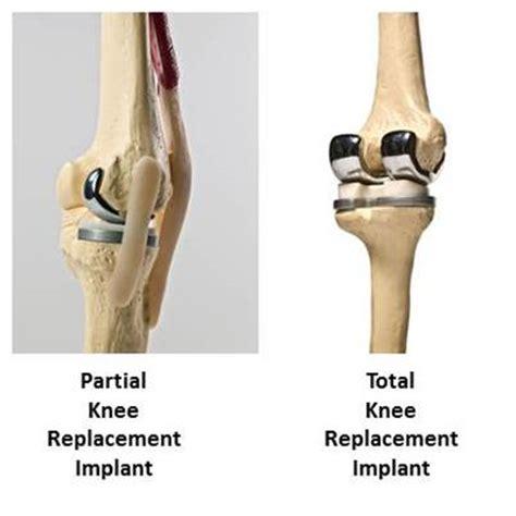 knee replacement   the san antonio orthopaedic group