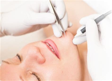 Types Of Permanent Hair Removal by Types Hair Removal Methods No More Hair