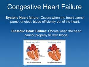 Congestive heart failure systolic heart failure occurs when the heart