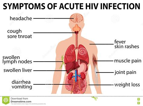 symptoms of hiv aids infection chart of symtoms of acute hiv infection stock vector