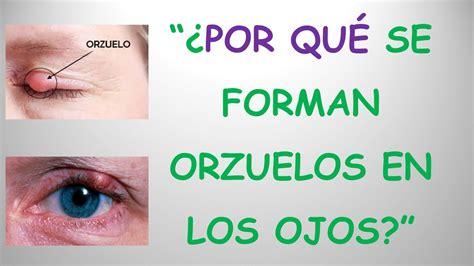 que se levanten los 191 por qu 201 se forman orzuelos en los ojos respuesta cientifica youtube