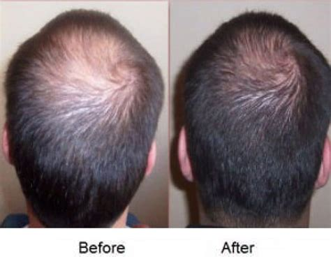 best shoo for thinning hair and hair loss mens hair treatment hair loss alopecia areata treatment