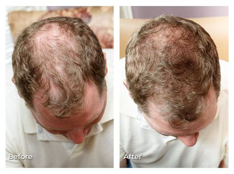 laser light therapy for hair loss reviews 1000 images about laser therapy for hair loss on