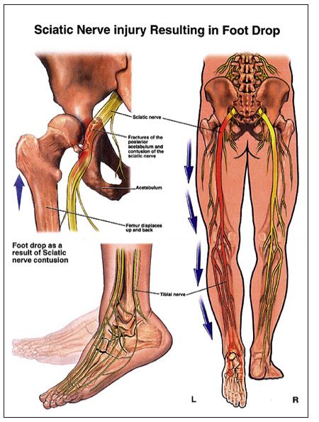 sciatic nerve location diagram sciatic nerve ankle relief