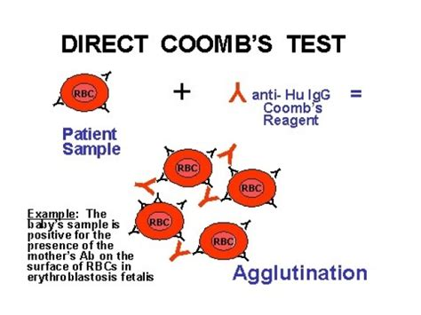 test di cooms the coombs test newborn nursery stanford medicine