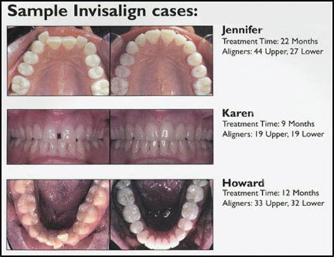 Harga Clear Aligner is align technology worth sinking your teeth into align