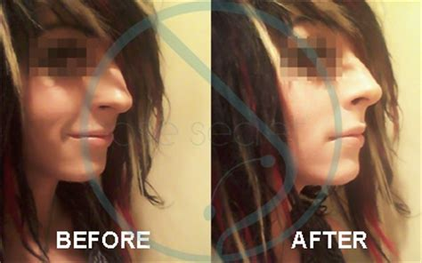 Nose Secret Nose Up 2 non surgical nose before and after nose reshaper