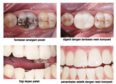 Bahan Kedokteran Gigi Ed 9 promosi penambalan gigi macam macam tambalan gigi