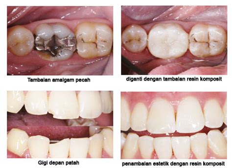 Gigi Palsu Anterior Gigi Depan Bright promosi penambalan gigi macam macam tambalan gigi