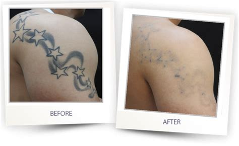immediate tattoo removal laser removal clearlift laser harmony xl pro