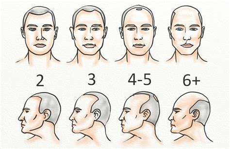 male pattern baldness numbers receding hairline regrowth 11 steps to regrow yours in