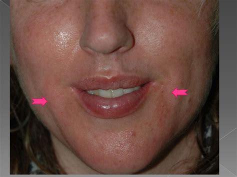 pics of buccal hollow filler the art of liquid face lift dermal fillers