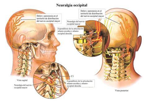 dolori dietro la testa dolor de nuca y cabeza cuello hombros espalda causas