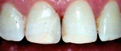 abington dental