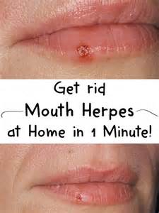 how to treat herpes at home get rid of herpes at home in 1 minute fashionwich
