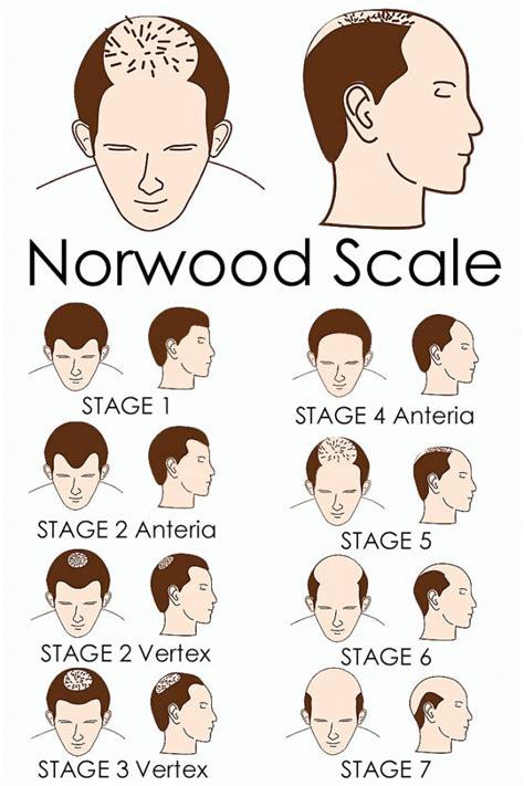 male pattern baldness exles male pattern baldness moorgate hair transplant