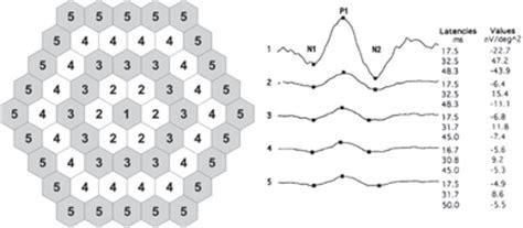 pattern erg interpretation multimodal imaging in plaquenil toxicity