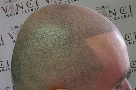 hair tattoo for bald men going bald in glasgow get a hair evening times