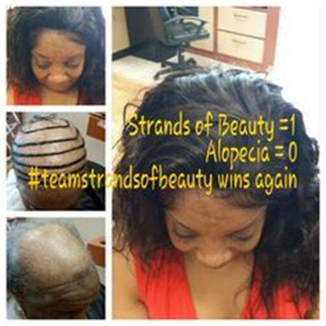 can people with severe alopecia get braids client w severe alopecia wanted crochet braids i sewed