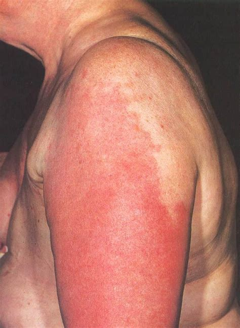 cellulitis c section image gallery strep cellulitis