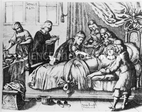 caesarean section origin historical artwork of a caesarean section stock image