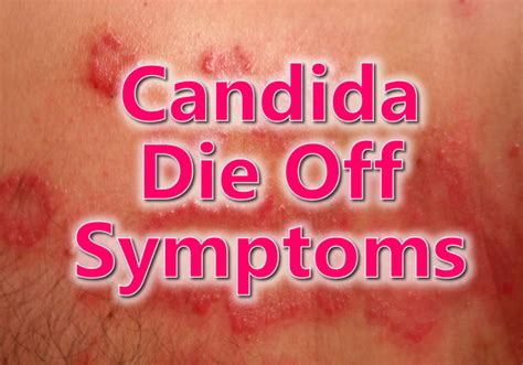 Herxheimer Detox Symptoms by Candida Die Symptoms Candida Die Yeast Die