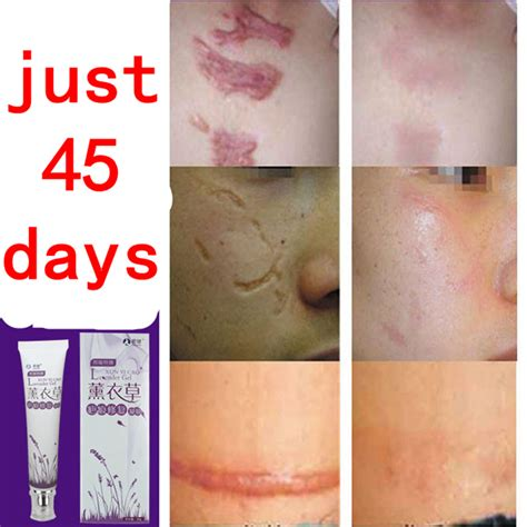 best acne light therapy best way for acne to heal