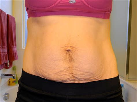 Stomach 3 Months After C Section by A Journey Back 3 Months Postpartum