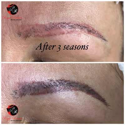 tattoo removal dubai removal cosmetic eyebrows royal retreat