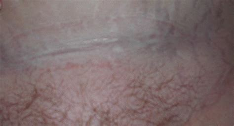 C Section Scar Infection Pictures by Pin Pin Cesarean Scar Cover Up Artistsorg On