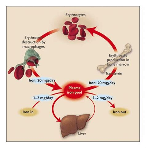 hereditary hemochromatosis — a new look at an old disease