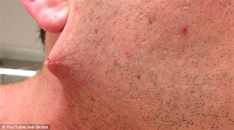 pictures of in grown hair in chin man pulls world s longest ingrown hair out of his face