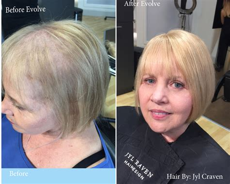 tired  fine  thinning hair    solution jyl