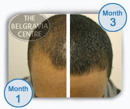 rogaine propecia success stories what is causing red scalp bumps peeling skin and hair loss