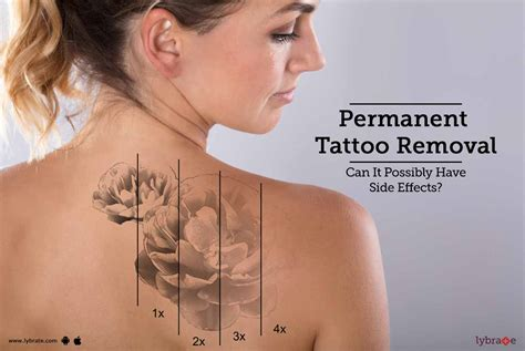 side effects of tattoos permanent removal can it possibly side