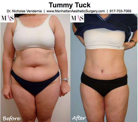 when can you have a tummy tuck after c section tummy tuck liposuction new york city liposuction manhattan