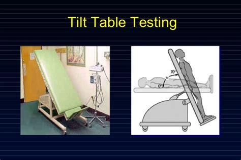 tilt table study fainting causes and ways to minimize risk
