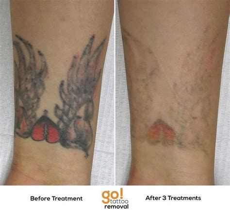 tattoo removal progress 825 best removal in progress images on