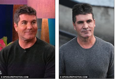 simon cowell fat face so whatever happened to simon cowell s face looking