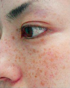 Excessive But Pretty by 1000 Images About Skin Blemish Therapy On