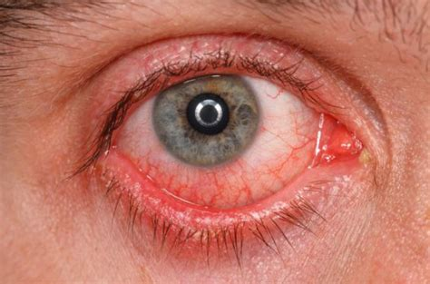 How Does Pink Eye Take To Heal