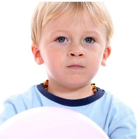 doccia con varicella bagno bambini varicella questo bambino ha il cancro ma 232