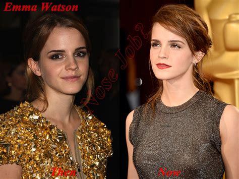 emma watson job did emma watson had nose job plastic surgery or not nose