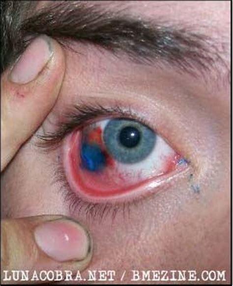foto tato bola mata ekstrim tato di bola mata berani